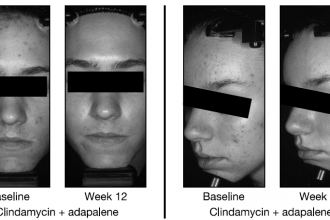 Adding Adapalene Gel to Clindamycin Helps Patients with Acne Vulgaris